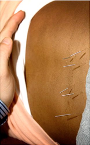 Acupuncture and Infertility
